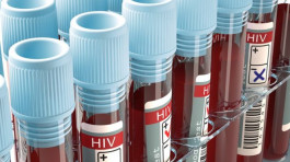 HIV effort let down by test shortages, says WHO