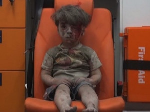 Little boy in Aleppo a vivid reminder of war`s horror