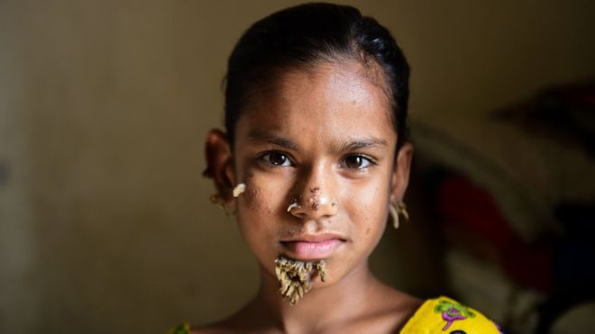 Bangladeshi girl may be first female with 'tree man syndrome'