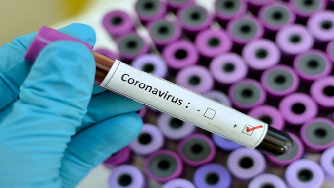 Azerbaijan confirms 29 new cases of coronavirus, 1 died, 5 recovered